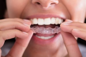 Invisalign-Masterpiece-Smiles-PC-Clinton-TN-Voted-Best-Dentist-Knoxville.